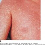 EBV-rash